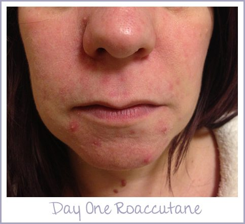 Day One Roaccutane
